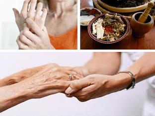 Что делать при артрите, как избавиться от боли и вернуть подвижность суставам