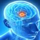 Что делать при диагнозе доброкачественная опухоль головного мозга?