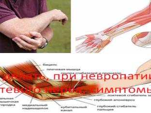 Что делать, при невропатии локтевого нерва, симптомы