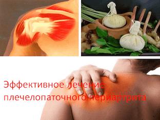 Эффективное лечение плечелопаточного периартрита