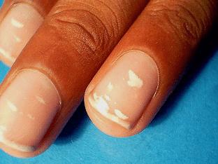От чего появляются белые пятна на ногтях рук, как избавиться