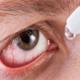 Помощь при воспалительных заболеваниях глаз