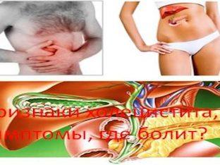 Признаки холецистита, симптомы, где болит