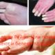 Синдром Рейно. Или почему немеют и белеют пальцы?