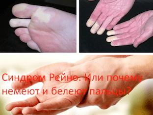 Синдром Рейно. Или почему немеют и белеют пальцы