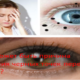 В чем может быть причина появления черных точек перед глазами?