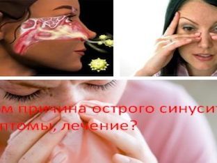 В чем причина острого синусита, симптомы, лечение