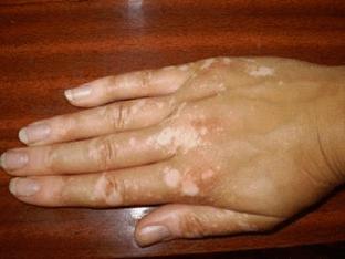 Как избавиться от белых пятен на руках