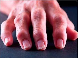 Как лечить артрит пальцев рук в домашних условиях