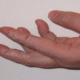 Как лечить грибок на коже и ногтях рук?