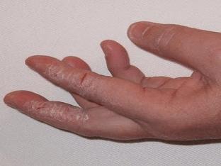 Как лечить грибок на коже и ногтях рук