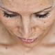 Как убрать пигментные пятна на лице быстро?