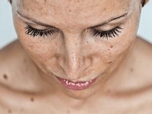 Как убрать пигментные пятна на лице быстро