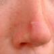 Простуда на носу: чем лечить в домашних условиях?