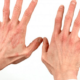 Как вылечить аллергический дерматит в домашних условиях?