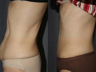 Способы, чтобы подтянуть кожу после похудения