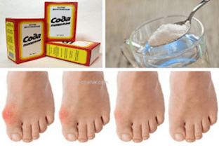 Как вылечить подагру пищевой содой