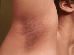 Потемневшая кожа подмышек. Что делать
