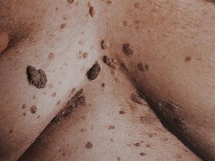 Что такое себорейный кератоз, методы его лечения и профилактики