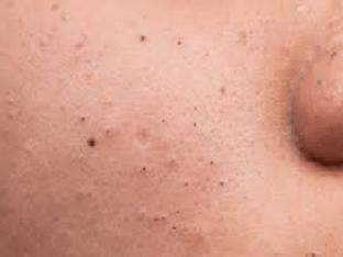 Черные точки на носу, щеках, подбородке: как избавиться и убрать