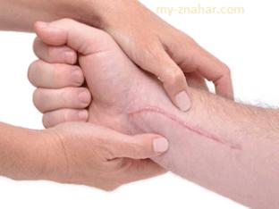 Как избавиться от рубцов и шрамов народными средствами