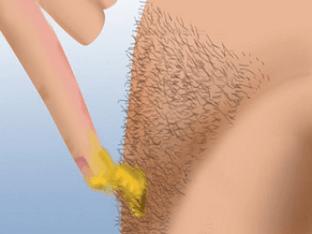 Как Лучше Удалить Волосы На Ногах