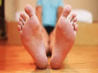 Натоптыши на ступнях: причины и лечение