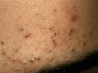 От чего появляются черные точки на лице
