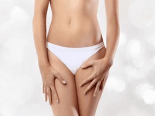 Почему возникает молочница у женщин